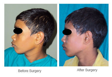 Cosmetic Nose Surgery, Nose Reshaping Rhinoplasty, Reshaping Nose